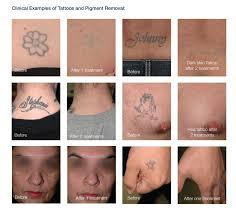 laser tattoo removal austin tx pigment removal dr jennifer walden