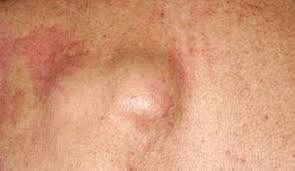hair vagaina photos ingrown hair on vagina labia bikini line groin pubic area