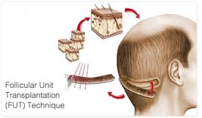 hair transplant america how much does a hair transplantation cost in turkey suggest good