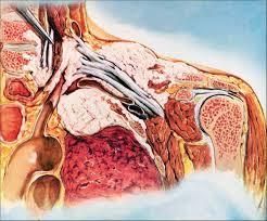 Human Anatomy Martini Management Of Pancoast Tumours The Lancet Oncology