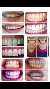 peroxide free whitening tooth paste natural stain removerfb hm
