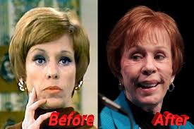 tamar braxton nose job before after carol burnett plastic surgery is very possible