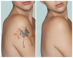 important facts about laser removal of color tattoos east coast