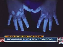 uvb light therapy for vitiligo uv technology reverses pigmentation loss from vitiligo