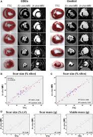validation of contrast enhanced magnetic resonance imaging to