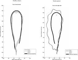 Rug And Tug Locomotor Trajectories Of Stroke Patients During Oriented Gait And