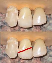 light cure composite filling composite fillings oral answers