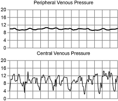 peripheral venous pressure measurements in patients with acute