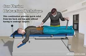 chiropractic drop table technique benefits of cox flexion distraction technique or cox technic