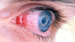 Sudden Blind Spot In Both Eyes Can Crohn U0027s Disease Affect Your Eyes Crohn U0027s Disease Center