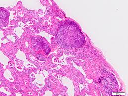 pathology outlines nonspecific interstitial pneumonia