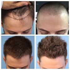 hair transplant month by month pictures progression from before hair transplant all the way up to 6