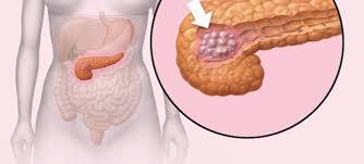 bauchspeicheldrüsenschwäche symptome bauchspeicheldrüsenkrebs das sind die anzeichen