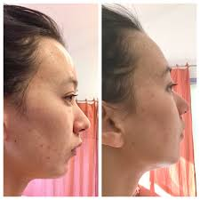 neutrogena light therapy acne mask before and after i tried that light therapy mask for 30 days and omg here s what happened