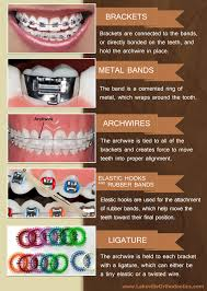 nickel free braces 5 parts of braces explained infographic braces lakeville