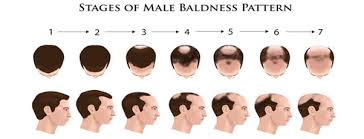 transplant hair second round draft what would be the hair transplant cost in delhi ncr quora