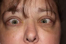 thyroid eye disesase patient information