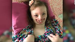 Little Girl Meme Teeth - why the mom of a child with a facial deformity fought to take down