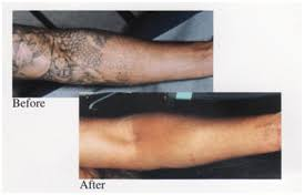 tattoo removal laser surgery india india tattoo removal surgeons india