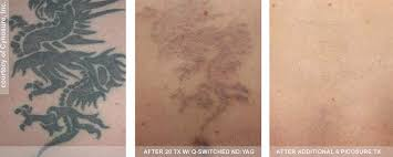 removal of all color tattoos with the upgraded picosure laser is