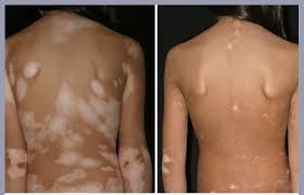 uvb light therapy for vitiligo painless uvb vitiligo treatment at home uvb ls