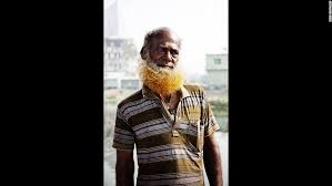 pictures of people who colored their hair with loreal feria b16 orange the new black in bangladesh cnn
