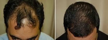 hair transplant tijuana 1 rated center in mexico