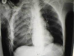chest injury