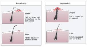 do ingrown hair hurt are you making this one shaving mistake that causes ingrown hairs