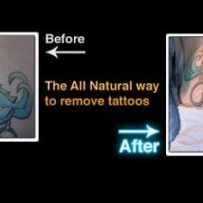 diamond tattoo removal and aesthetics non laser tattoo removal