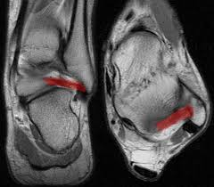 Ankle Ligament Tear Mri Raddaily Com A New Image Everyday With A Description