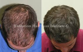 short hair styles for women with alopecia before and after hair growth treatment photos