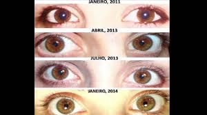 eye changes on raw food diet before and after youtube
