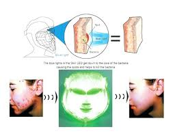 blue and red light therapy for acne reviews delighted at home blue light therapy pictures inspiration home