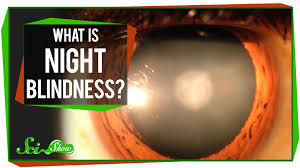 What Causes Eye Blindness What Is Night Blindness Youtube