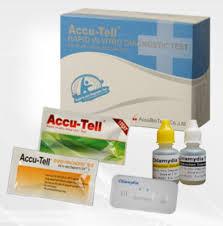 test std test rapide pour chlamydia de chlamydia trachomatis d urine
