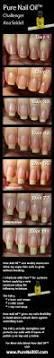 best 25 cracked nails ideas on pinterest repair broken nail