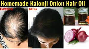 hair care homemade kalonji onion hair oil diy hair growth oil