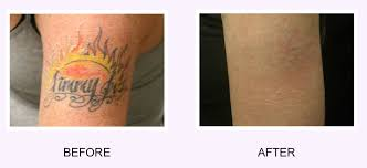 tattoo removal before and after how to get rid of tattoo 2017