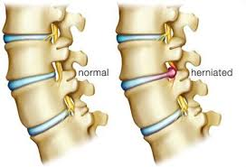 Back Pain When Getting Out Of Chair Low Back Pain Symptoms Causes Treatment Relief
