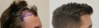 hair transplant america my new hair feels awesome dr rahal reviews revealed