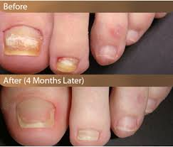 laser toenail fungus removal with exam and follow up aesthetic
