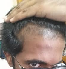 need help 24 y with hair thinning and male pattern baldness
