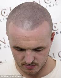 hair uk bald men turn to hair tattoos to creates the illusion of