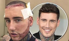 sean coronation street hair tansplant jeremy mcconnell shows off hair transplant in turkey daily mail
