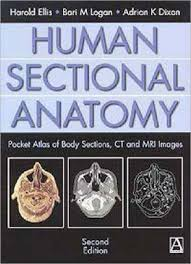 Mri Sectional Anatomy Human Sectional Anatomy Body Sections Ct And Mri Images