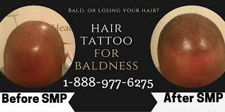 balding get your hair back with a hair travel to toronto