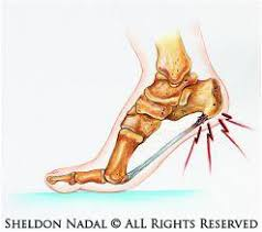 Planters Fasciitis Surgery by Heel Spur Pain Plantar Fasciitis Treatment By Toronto Ontario