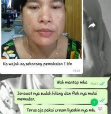 Salep Hitam Di Apotik obat flek hitam di wajah yang aman untuk ibu obat khusus