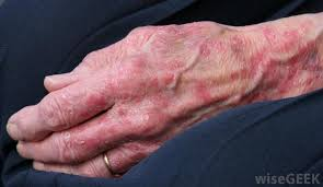 what are the signs of an allergic reaction to titanium